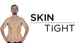 Kilogramy zbędnej skóry